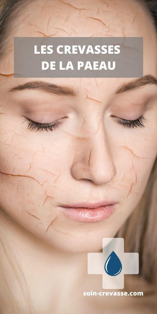 crevasses de la peau