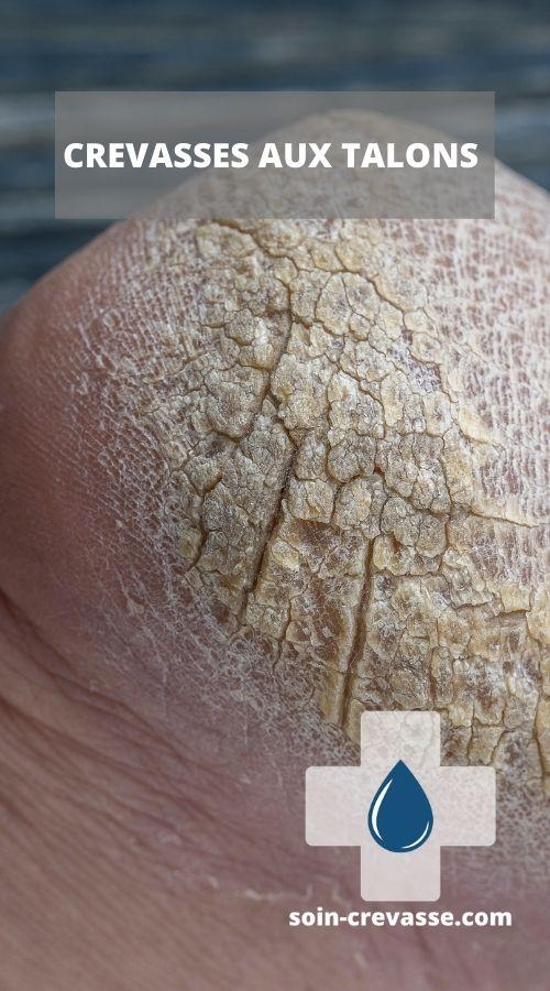 crevasses aux talons