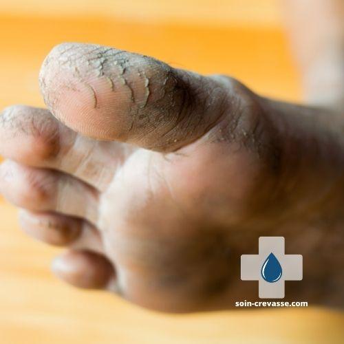 pieds crevassés
