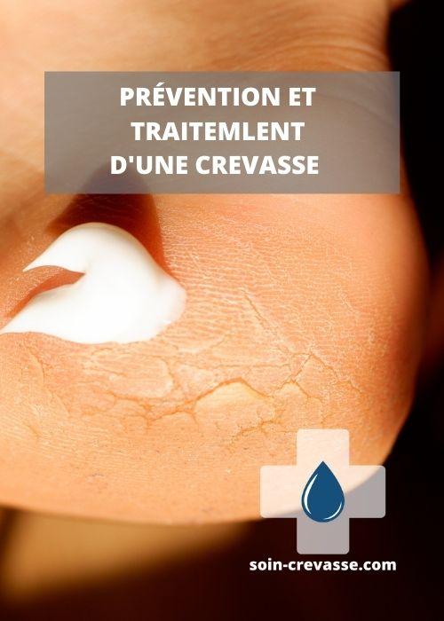 prévention et traitement des crevasses