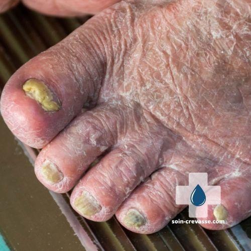 Pieds secs et ongles endommagés