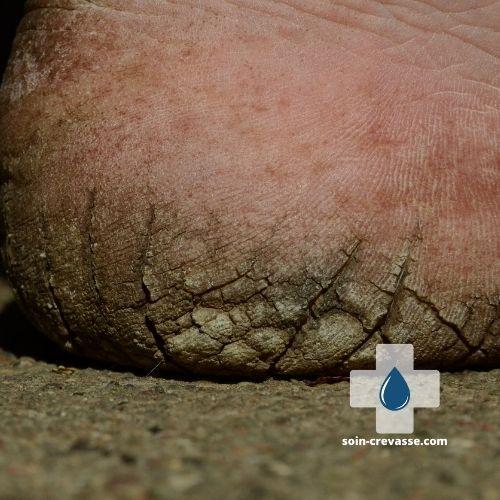 crevasse au talon pour laquelle un soin nettoyant est nécessaire