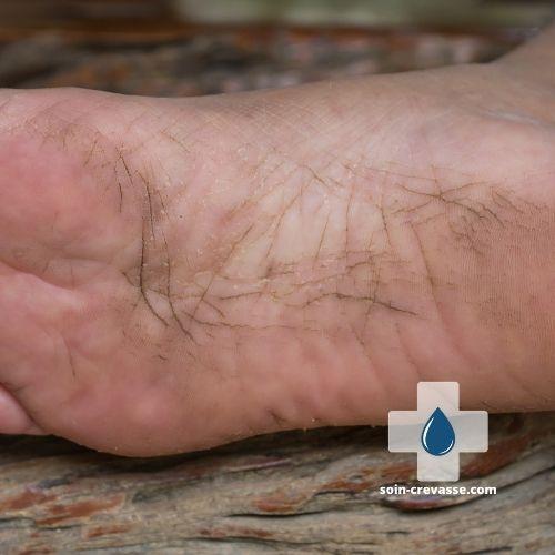 crevasses sur la plante du pied