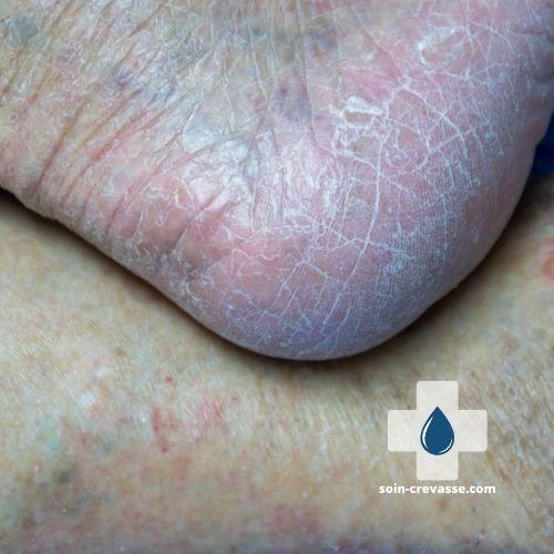 peau des pieds très sèche et craquelée