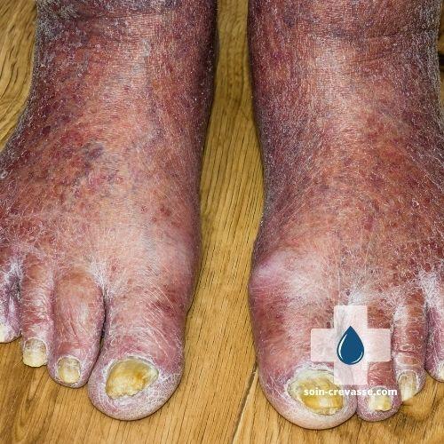 pieds craquelés, ongles non entretenus