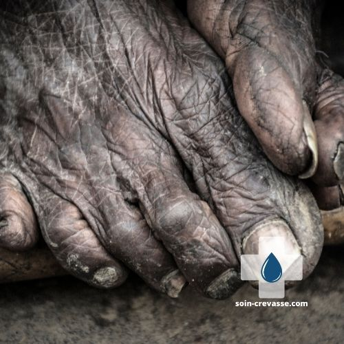 pieds crevassés et ridés