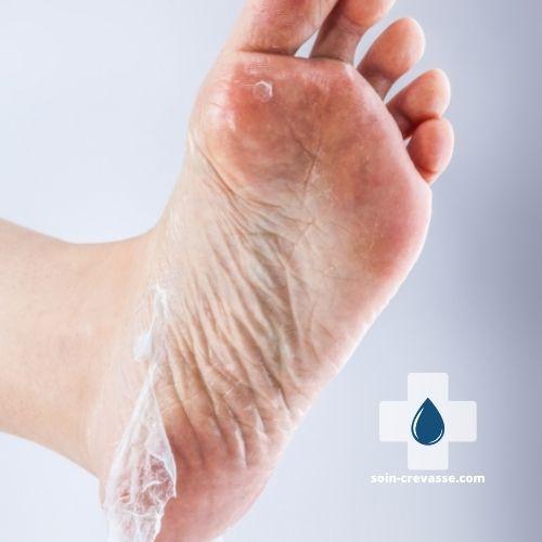 problème de peau au pied