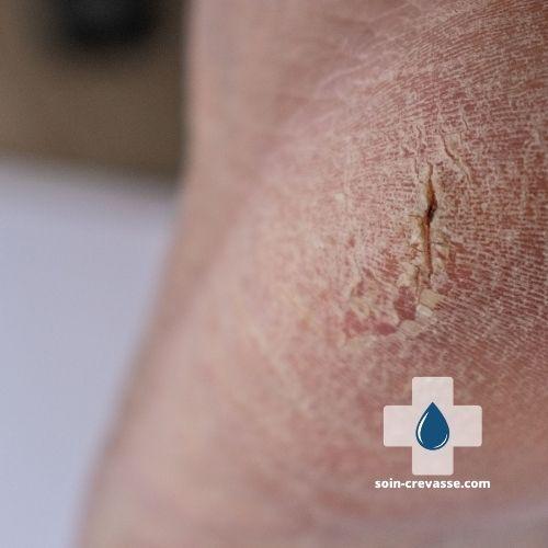 talon blessé par une fissure